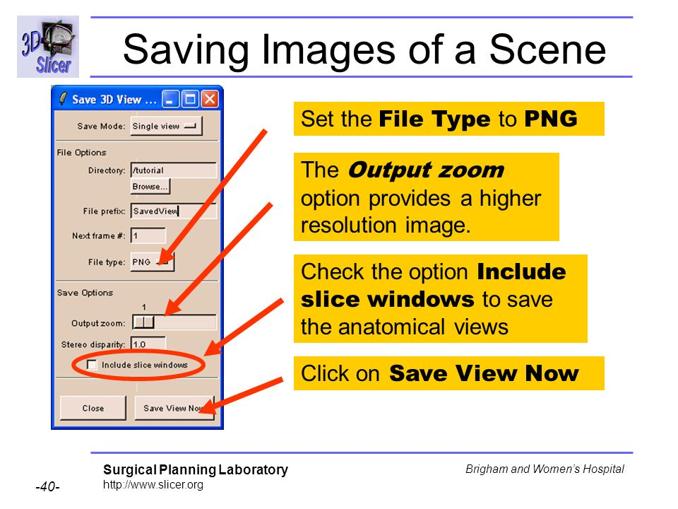 Surgical Planning Laboratory http://www.slicer.org -40- Brigham and Womens Hospital Saving Images of a Scene Set the File Type to PNG Check the option Include slice windows to save the anatomical views Click on Save View Now The Output zoom option provides a higher resolution image.