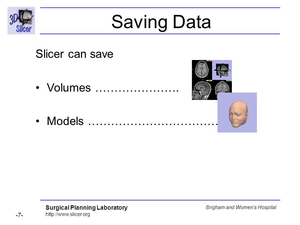 Surgical Planning Laboratory http://www.slicer.org -7- Brigham and Womens Hospital Saving Data Slicer can save Volumes ………………….