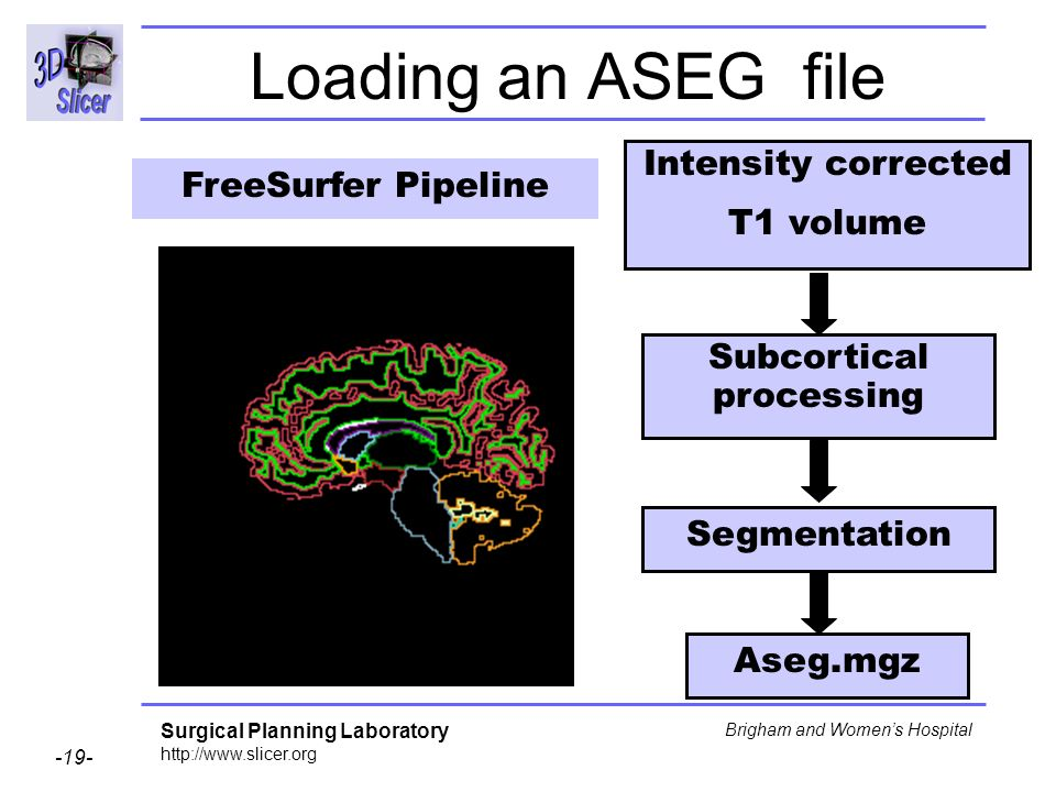 Surgical Planning Laboratory http://www.slicer.org -19- Brigham and Womens Hospital Loading an ASEG file Aseg.mgz Segmentation Subcortical processing