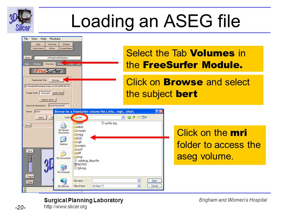 Surgical Planning Laboratory http://www.slicer.org -20- Brigham and Womens Hospital Loading an ASEG file Select the Tab Volumes in the FreeSurfer Modu