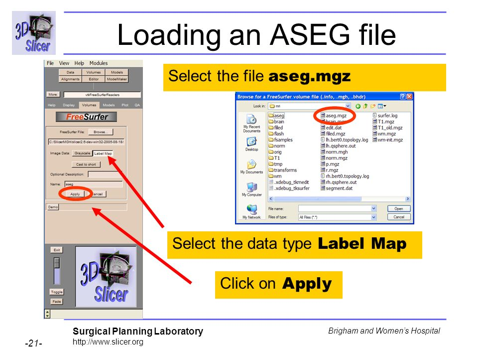 Surgical Planning Laboratory http://www.slicer.org -21- Brigham and Womens Hospital Loading an ASEG file Select the file aseg.mgz Select the data type