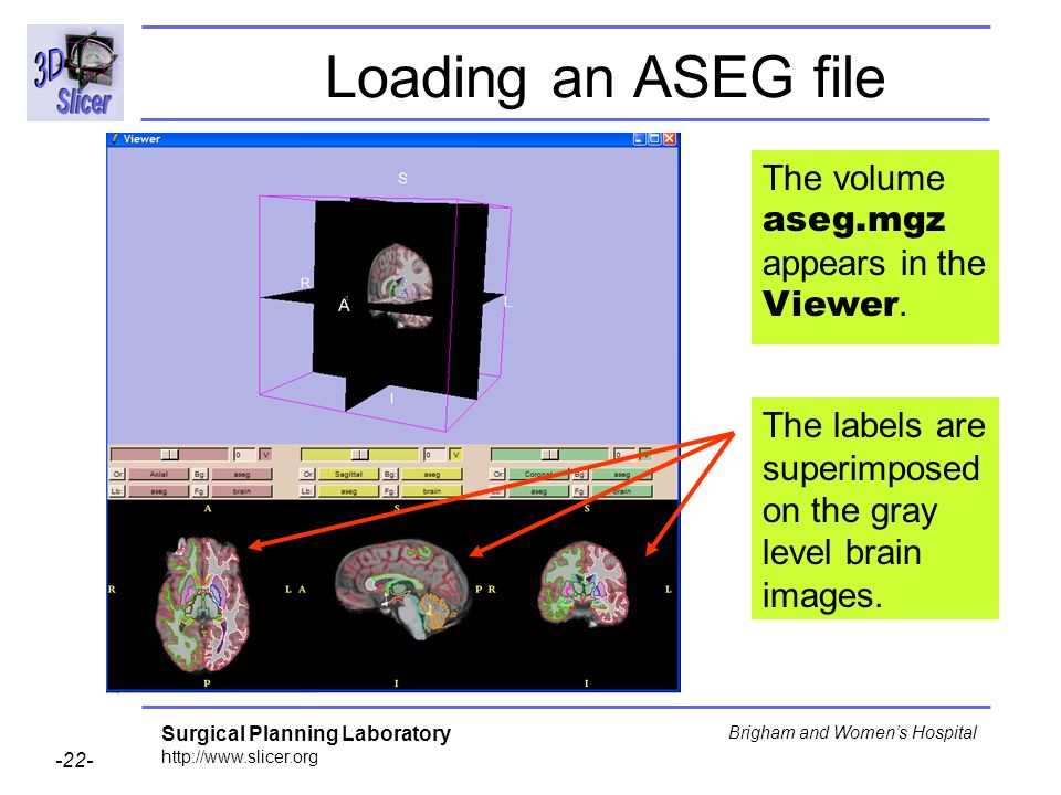 Surgical Planning Laboratory http://www.slicer.org -22- Brigham and Womens Hospital Loading an ASEG file The labels are superimposed on the gray level