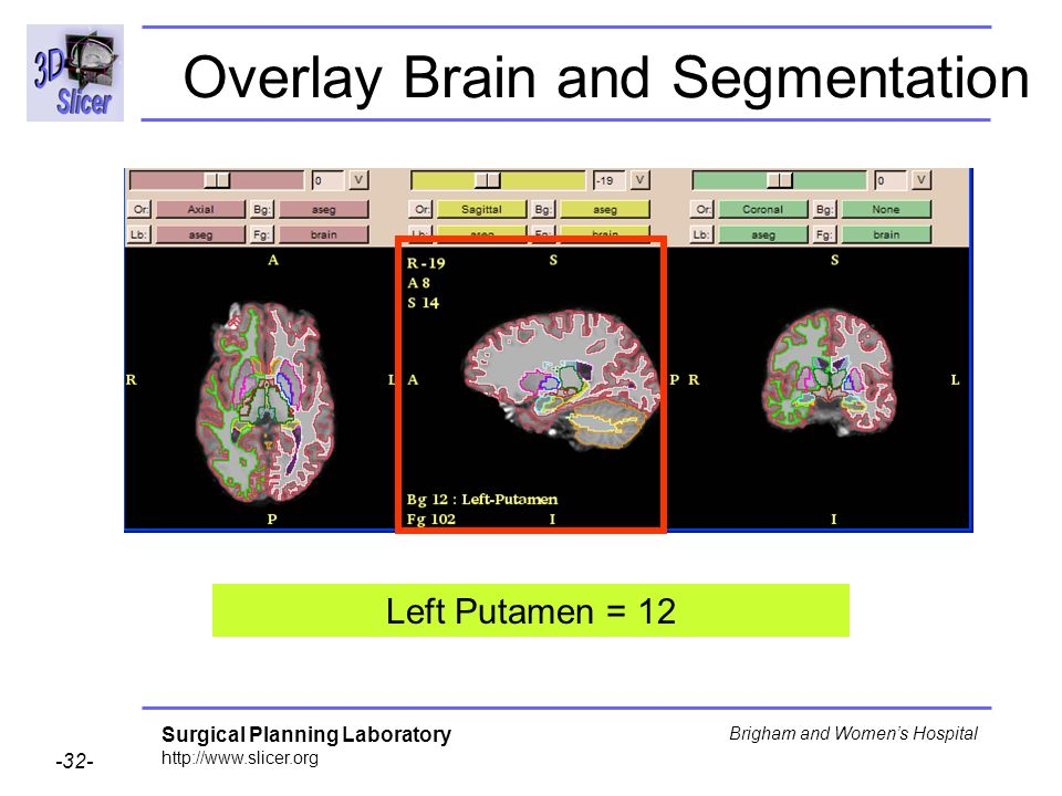 Surgical Planning Laboratory http://www.slicer.org -32- Brigham and Womens Hospital Overlay Brain and Segmentation Left Putamen = 12