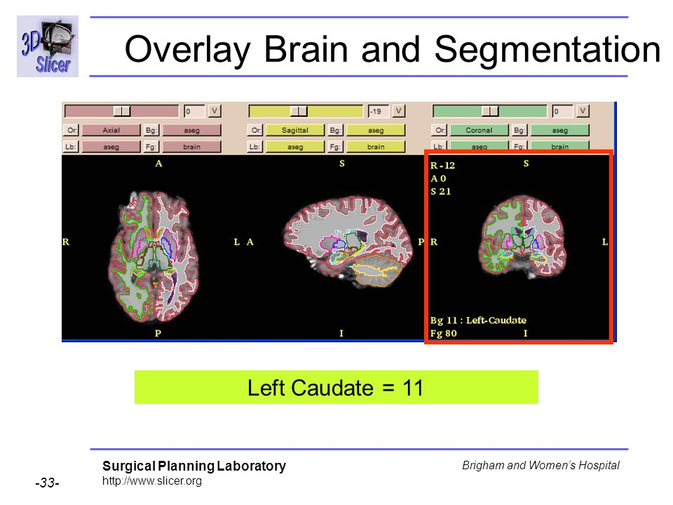 Surgical Planning Laboratory http://www.slicer.org -33- Brigham and Womens Hospital Overlay Brain and Segmentation Left Caudate = 11
