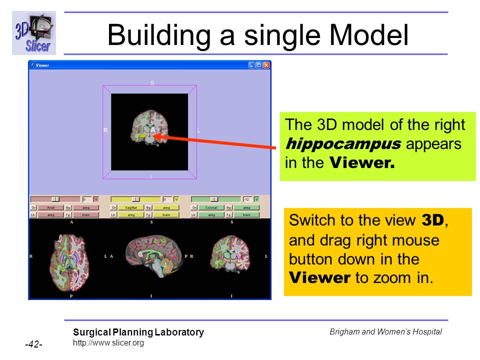 Surgical Planning Laboratory http://www.slicer.org -42- Brigham and Womens Hospital Building a single Model The 3D model of the right hippocampus appe