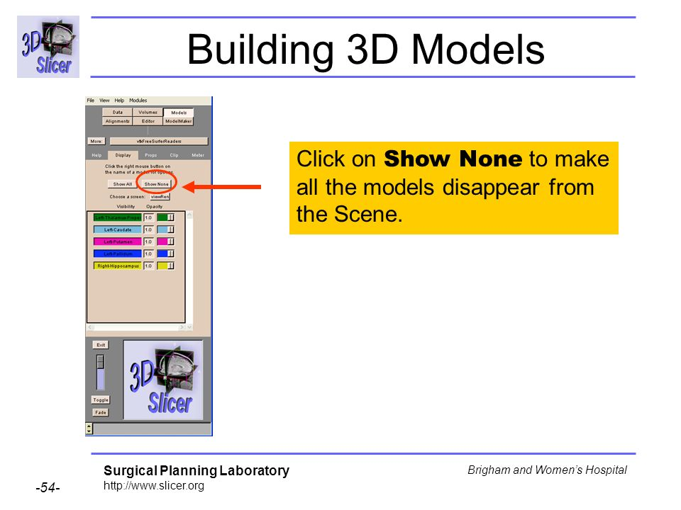 Surgical Planning Laboratory http://www.slicer.org -54- Brigham and Womens Hospital Building 3D Models Click on Show None to make all the models disap