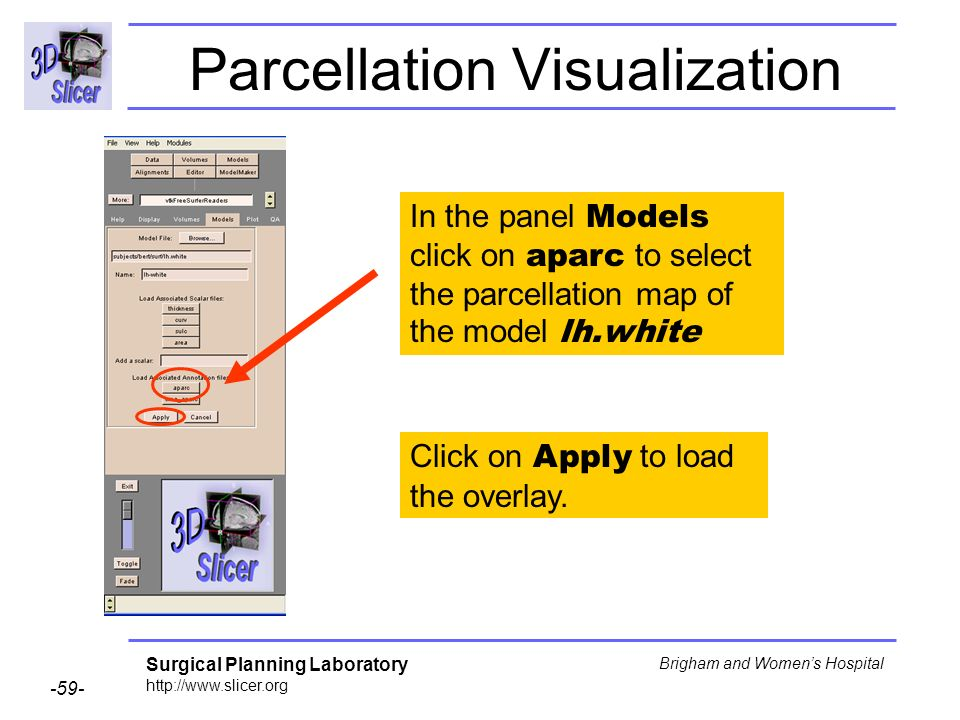 Surgical Planning Laboratory http://www.slicer.org -59- Brigham and Womens Hospital Parcellation Visualization In the panel Models click on aparc to s