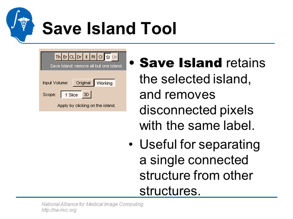 National Alliance for Medical Image Computing http://na-mic.org Save Island Tool Save Island retains the selected island, and removes disconnected pixels with the same label.