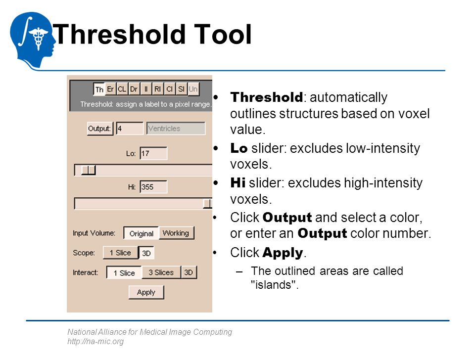 National Alliance for Medical Image Computing http://na-mic.org Threshold Tool Threshold : automatically outlines structures based on voxel value.