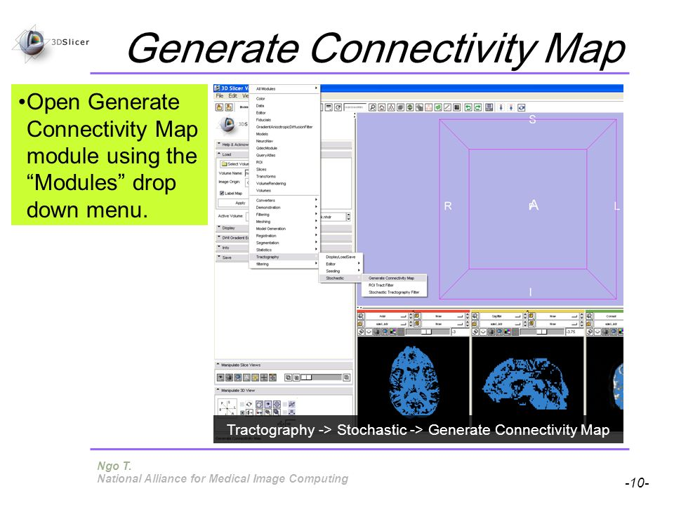 Pujol S, Gollub R -10- National Alliance for Medical Image Computing Generate Connectivity Map Open Generate Connectivity Map module using the Modules drop down menu.