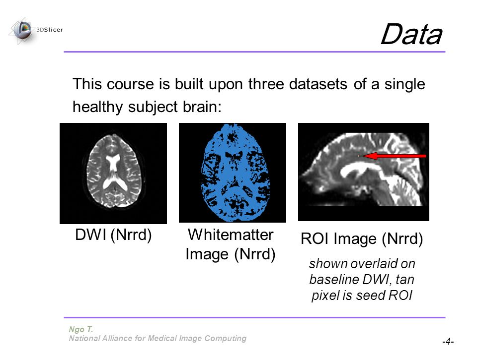 Pujol S, Gollub R -4- National Alliance for Medical Image Computing Data This course is built upon three datasets of a single healthy subject brain: DWI (Nrrd)Whitematter Image (Nrrd) ROI Image (Nrrd) shown overlaid on baseline DWI, tan pixel is seed ROI Ngo T.