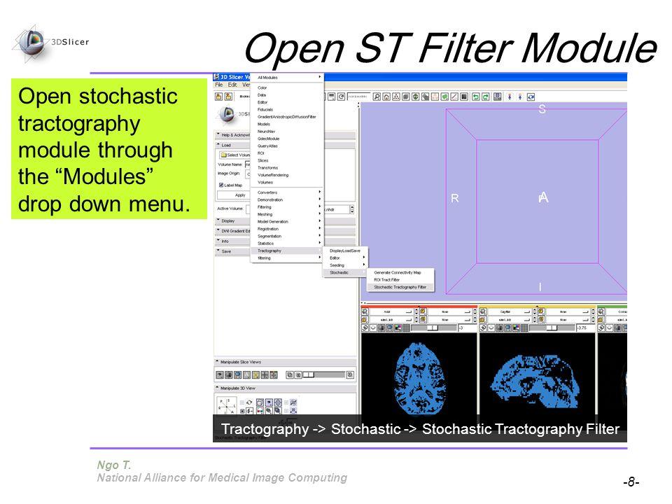 Pujol S, Gollub R -8- National Alliance for Medical Image Computing Open stochastic tractography module through the Modules drop down menu. Open ST Fi