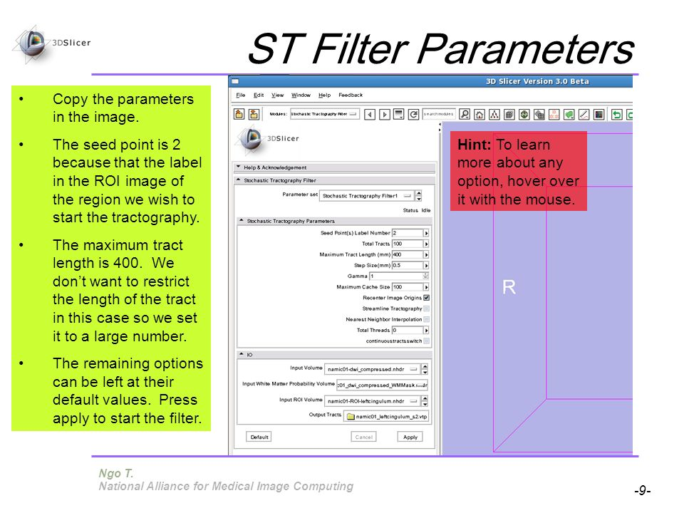 Pujol S, Gollub R -9- National Alliance for Medical Image Computing ST Filter Parameters Copy the parameters in the image.