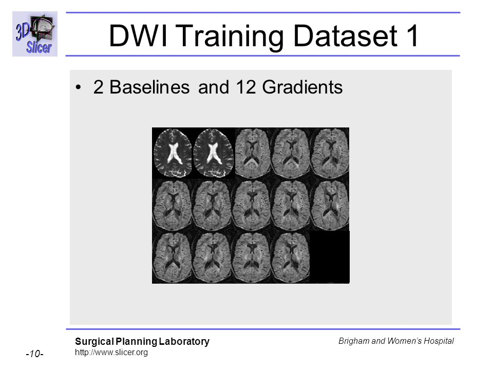 Surgical Planning Laboratory http://www.slicer.org -10- Brigham and Womens Hospital DWI Training Dataset 1 2 Baselines and 12 Gradients
