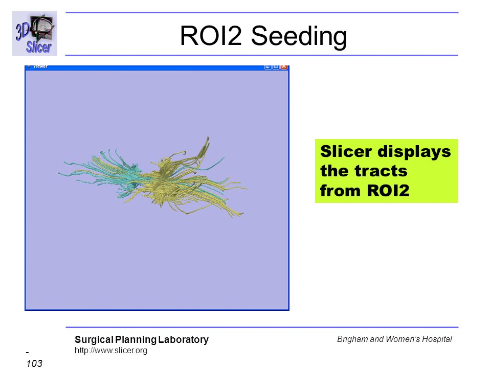 Surgical Planning Laboratory Brigham and Womens Hospital ROI2 Seeding Slicer displays the tracts from ROI2