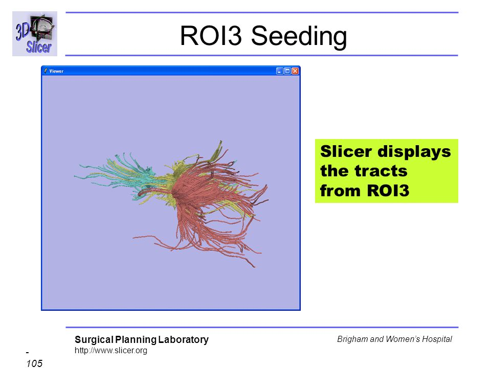Surgical Planning Laboratory http://www.slicer.org - 105 - Brigham and Womens Hospital ROI3 Seeding Slicer displays the tracts from ROI3