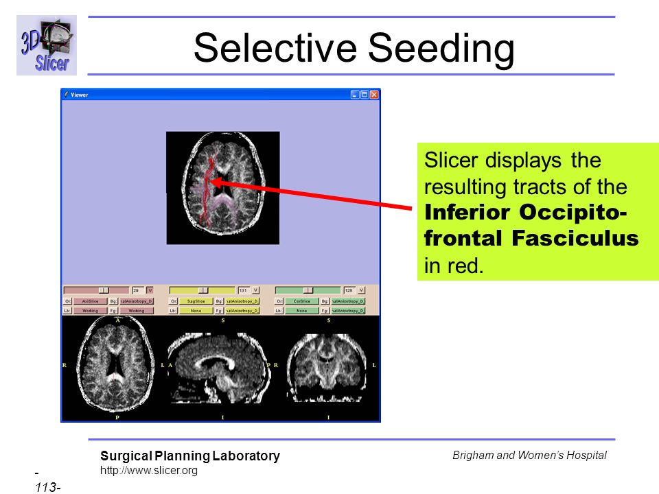 Surgical Planning Laboratory http://www.slicer.org - 113- Brigham and Womens Hospital Selective Seeding Slicer displays the resulting tracts of the Inferior Occipito- frontal Fasciculus in red.