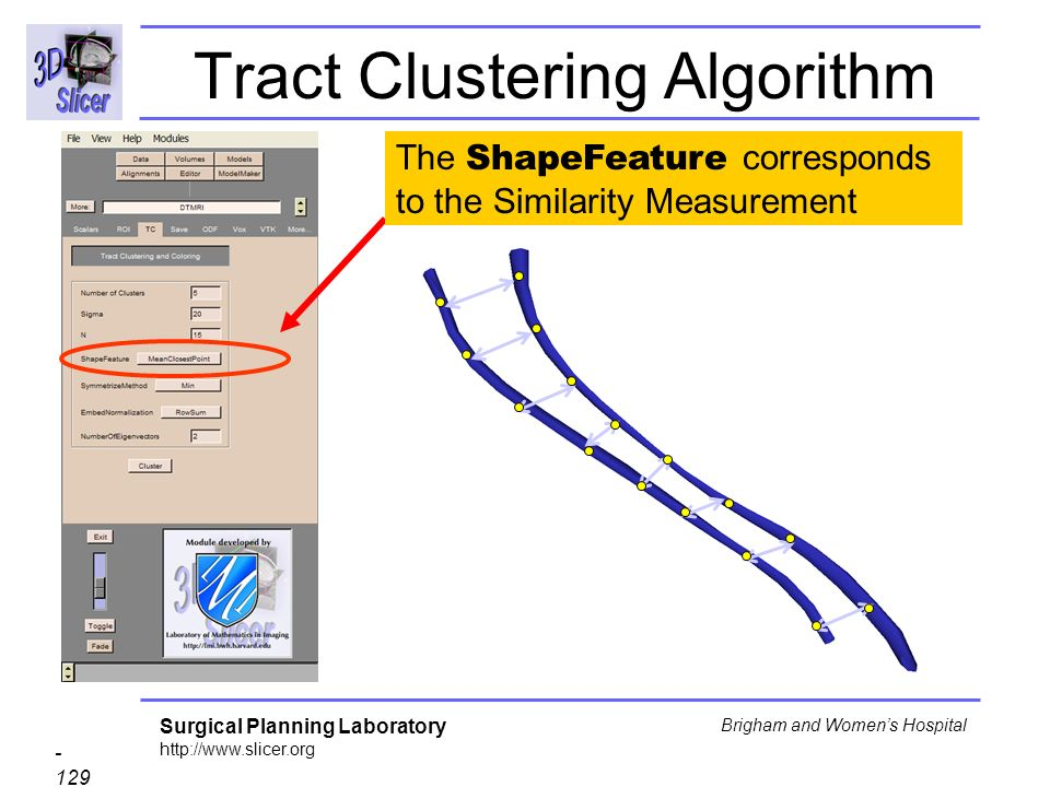 Surgical Planning Laboratory Brigham and Womens Hospital Tract Clustering Algorithm The ShapeFeature corresponds to the Similarity Measurement