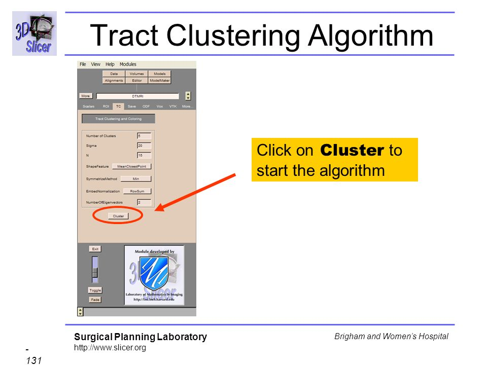 Surgical Planning Laboratory http://www.slicer.org - 131 - Brigham and Womens Hospital Tract Clustering Algorithm Click on Cluster to start the algorithm