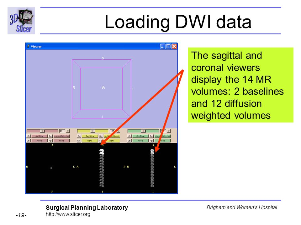 Surgical Planning Laboratory http://www.slicer.org -19- Brigham and Womens Hospital Loading DWI data The sagittal and coronal viewers display the 14 MR volumes: 2 baselines and 12 diffusion weighted volumes