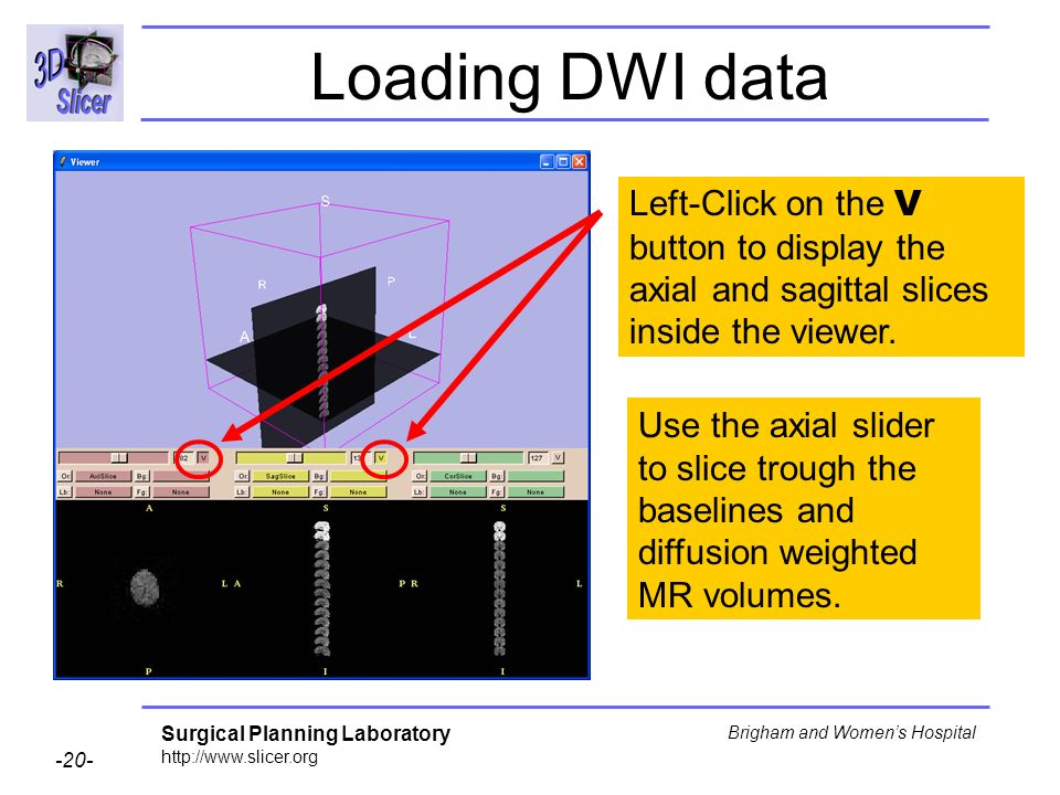 Surgical Planning Laboratory http://www.slicer.org -20- Brigham and Womens Hospital Loading DWI data Left-Click on the V button to display the axial a