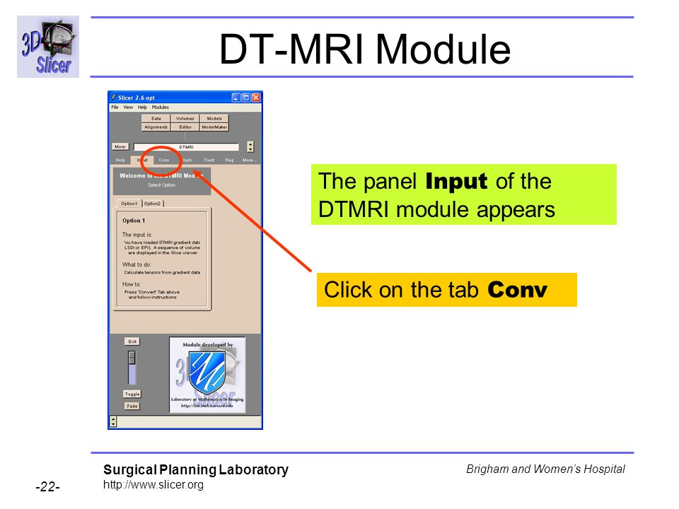 Surgical Planning Laboratory Brigham and Womens Hospital DT-MRI Module The panel Input of the DTMRI module appears Click on the tab Conv