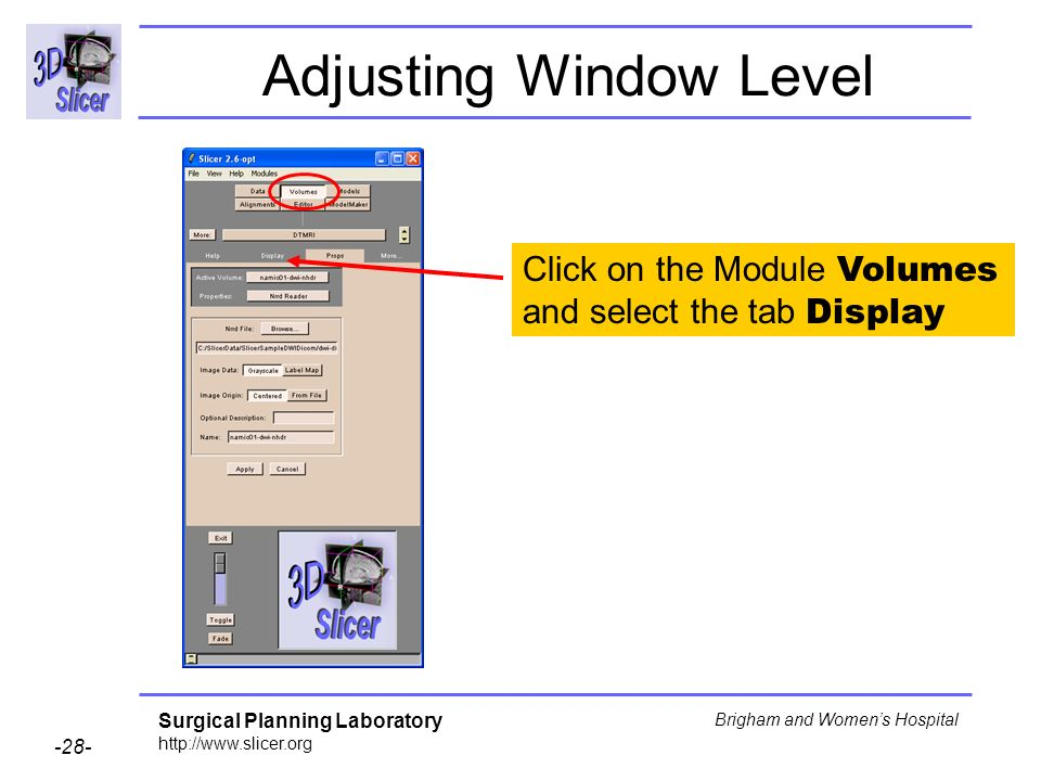 Surgical Planning Laboratory http://www.slicer.org -28- Brigham and Womens Hospital Adjusting Window Level Click on the Module Volumes and select the tab Display