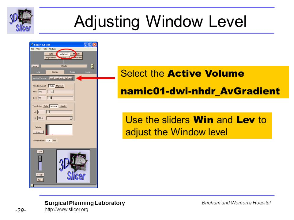 Surgical Planning Laboratory http://www.slicer.org -29- Brigham and Womens Hospital Adjusting Window Level Select the Active Volume namic01-dwi-nhdr_AvGradient Use the sliders Win and Lev to adjust the Window level