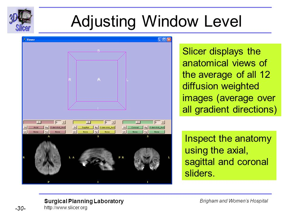 Surgical Planning Laboratory http://www.slicer.org -30- Brigham and Womens Hospital Adjusting Window Level Slicer displays the anatomical views of the average of all 12 diffusion weighted images (average over all gradient directions) Inspect the anatomy using the axial, sagittal and coronal sliders.