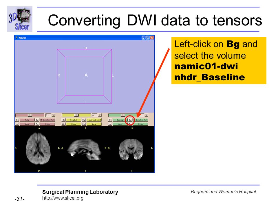 Surgical Planning Laboratory http://www.slicer.org -31- Brigham and Womens Hospital Left-click on Bg and select the volume namic01-dwi nhdr_Baseline Converting DWI data to tensors