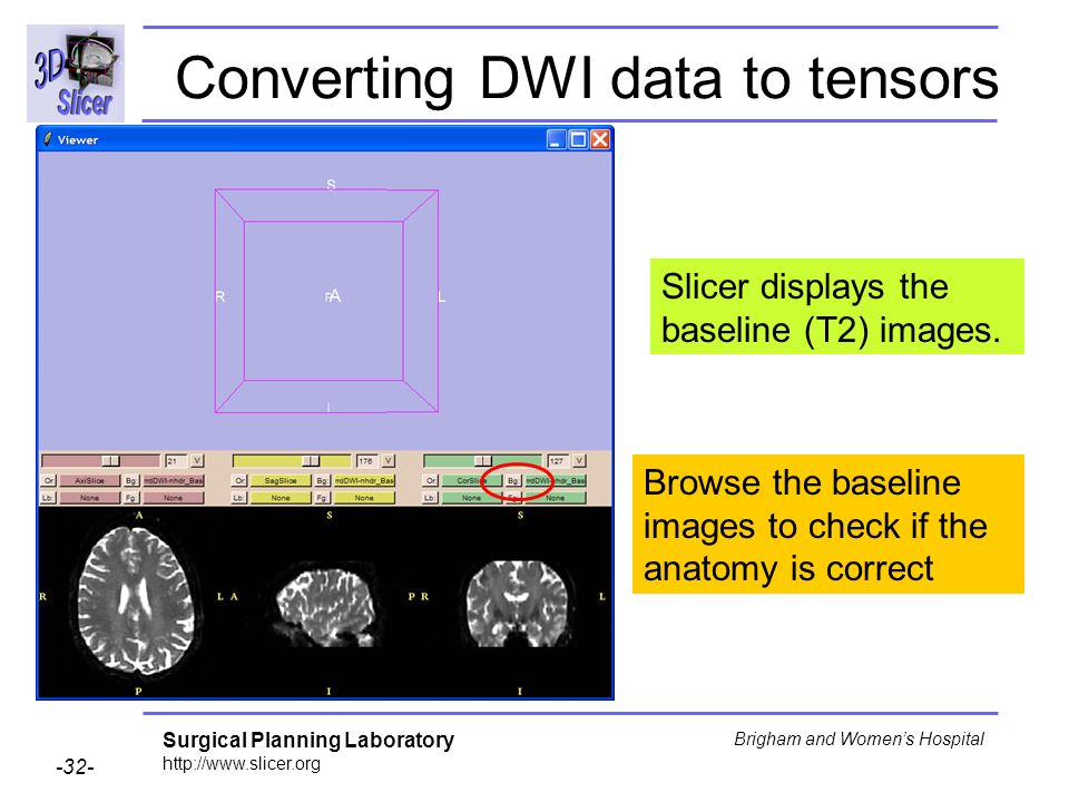 Surgical Planning Laboratory http://www.slicer.org -32- Brigham and Womens Hospital Browse the baseline images to check if the anatomy is correct Converting DWI data to tensors Slicer displays the baseline (T2) images.