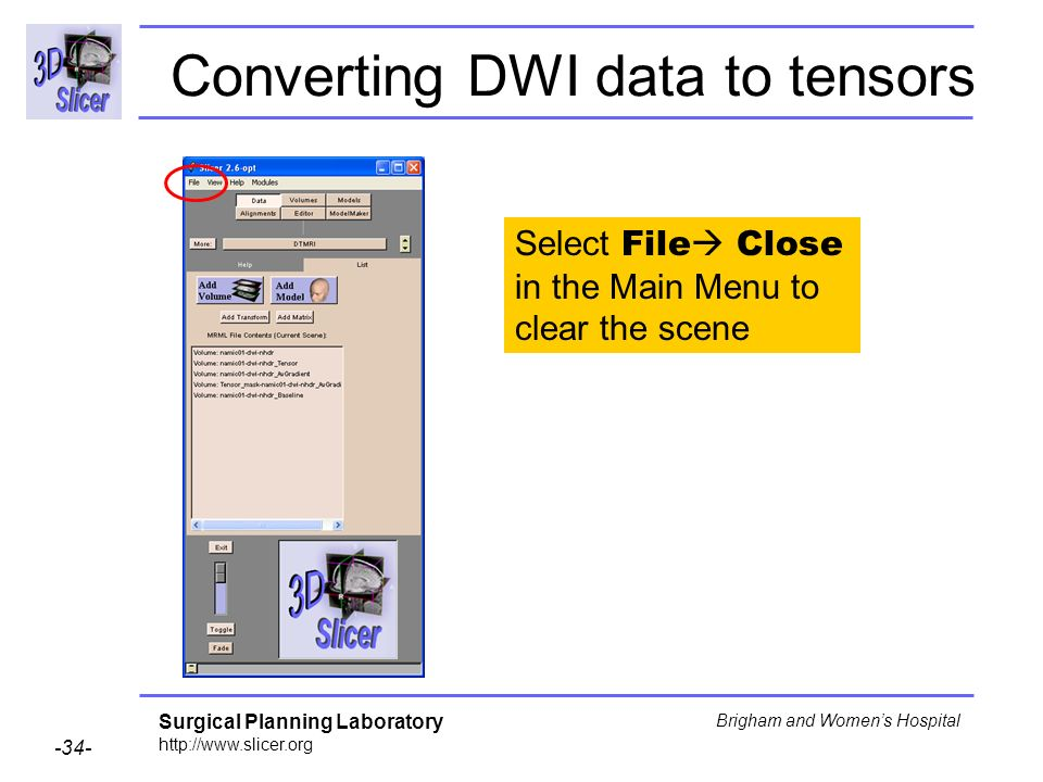 Surgical Planning Laboratory http://www.slicer.org -34- Brigham and Womens Hospital Converting DWI data to tensors Select File Close in the Main Menu to clear the scene