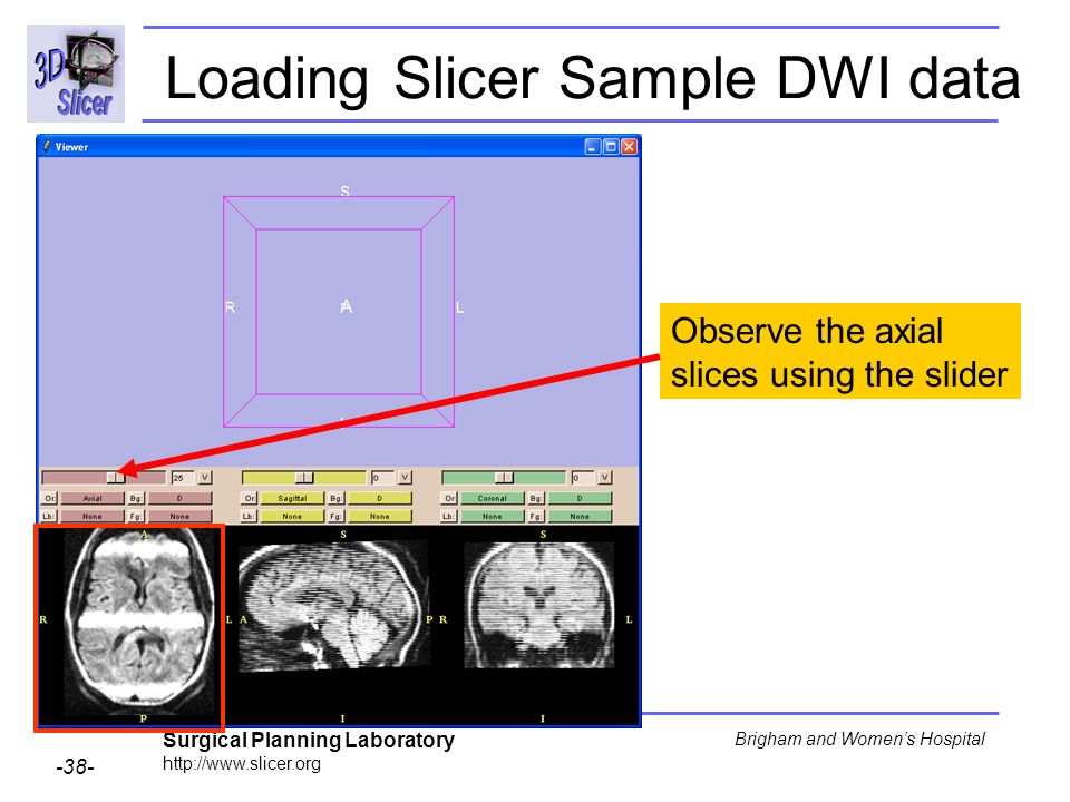 Surgical Planning Laboratory http://www.slicer.org -38- Brigham and Womens Hospital Observe the axial slices using the slider Loading Slicer Sample DW