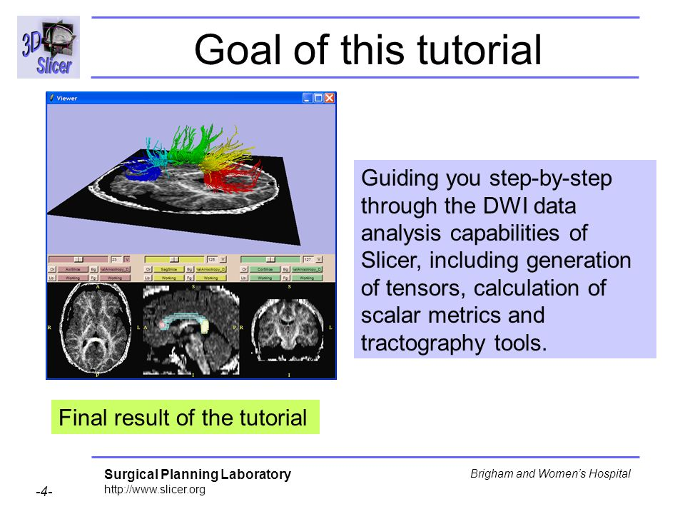 Surgical Planning Laboratory Brigham and Womens Hospital Goal of this tutorial Guiding you step-by-step through the DWI data analysis capabilities of Slicer, including generation of tensors, calculation of scalar metrics and tractography tools.