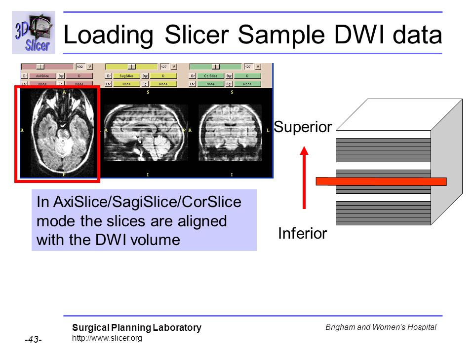 Surgical Planning Laboratory Brigham and Womens Hospital Inferior Superior In AxiSlice/SagiSlice/CorSlice mode the slices are aligned with the DWI volume Loading Slicer Sample DWI data