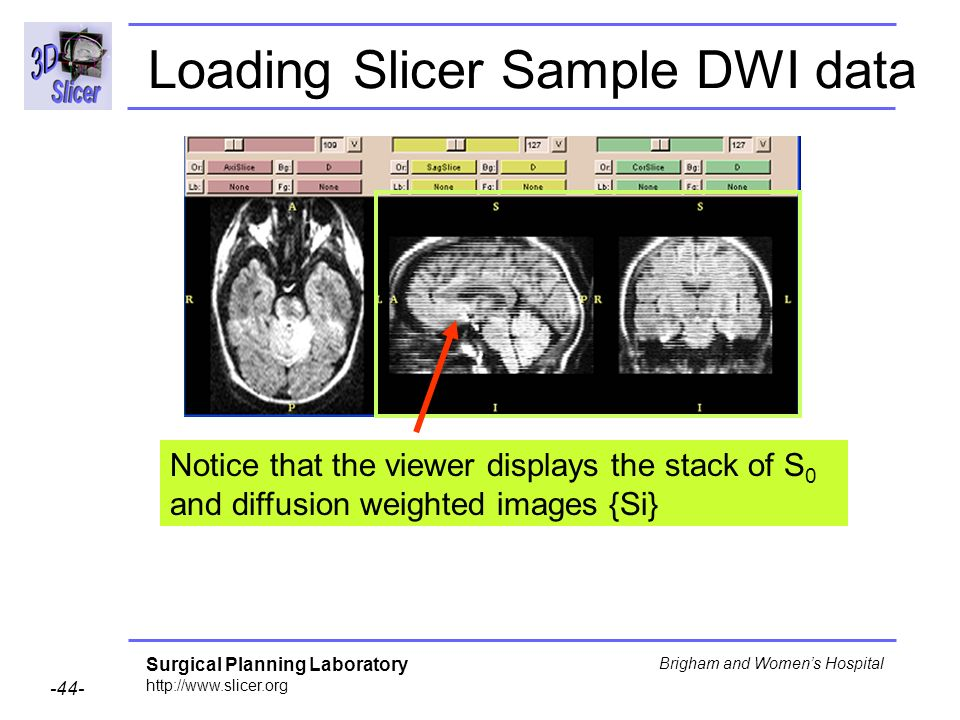 Surgical Planning Laboratory http://www.slicer.org -44- Brigham and Womens Hospital Loading Slicer Sample DWI data Notice that the viewer displays the stack of S 0 and diffusion weighted images {Si}