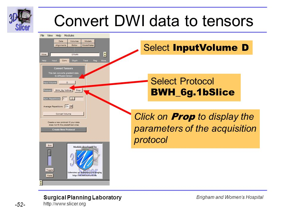 Surgical Planning Laboratory Brigham and Womens Hospital Convert DWI data to tensors Select InputVolume D Select Protocol BWH_6g.1bSlice Click on Prop to display the parameters of the acquisition protocol