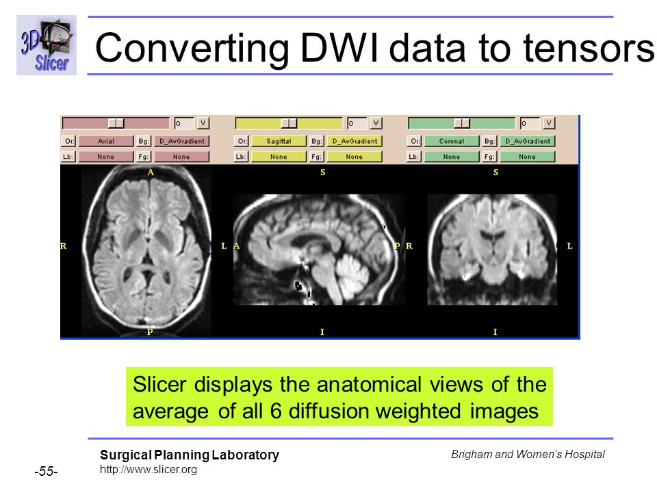 Surgical Planning Laboratory http://www.slicer.org -55- Brigham and Womens Hospital Converting DWI data to tensors Slicer displays the anatomical views of the average of all 6 diffusion weighted images
