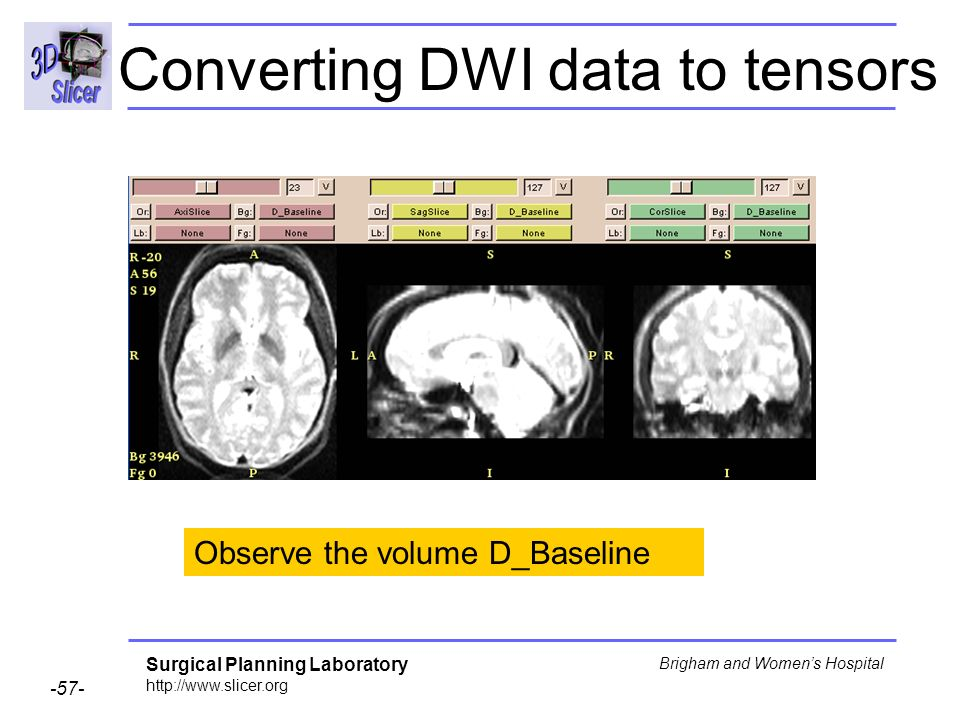 Surgical Planning Laboratory http://www.slicer.org -57- Brigham and Womens Hospital Converting DWI data to tensors Observe the volume D_Baseline