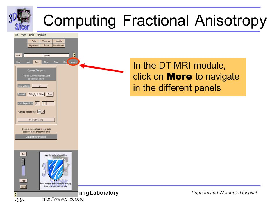 Surgical Planning Laboratory http://www.slicer.org -59- Brigham and Womens Hospital Computing Fractional Anisotropy In the DT-MRI module, click on Mor