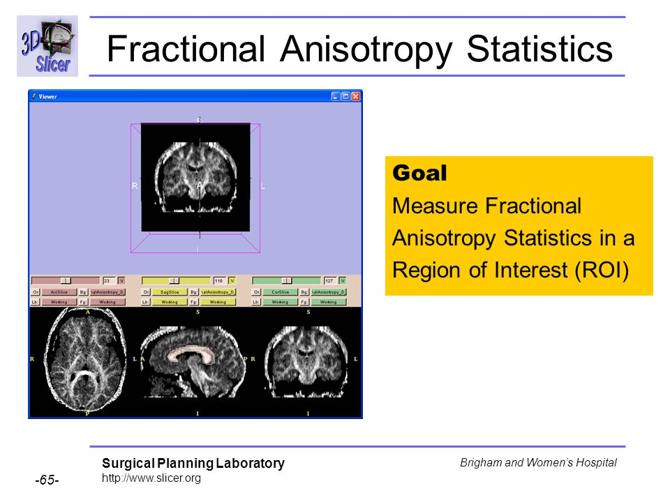 Surgical Planning Laboratory http://www.slicer.org -65- Brigham and Womens Hospital Fractional Anisotropy Statistics Goal Measure Fractional Anisotropy Statistics in a Region of Interest (ROI)