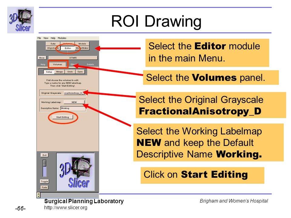 Surgical Planning Laboratory http://www.slicer.org -66- Brigham and Womens Hospital ROI Drawing Select the Editor module in the main Menu. Select the