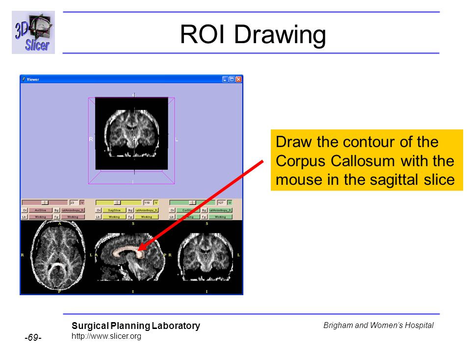 Surgical Planning Laboratory http://www.slicer.org -69- Brigham and Womens Hospital ROI Drawing Draw the contour of the Corpus Callosum with the mouse in the sagittal slice