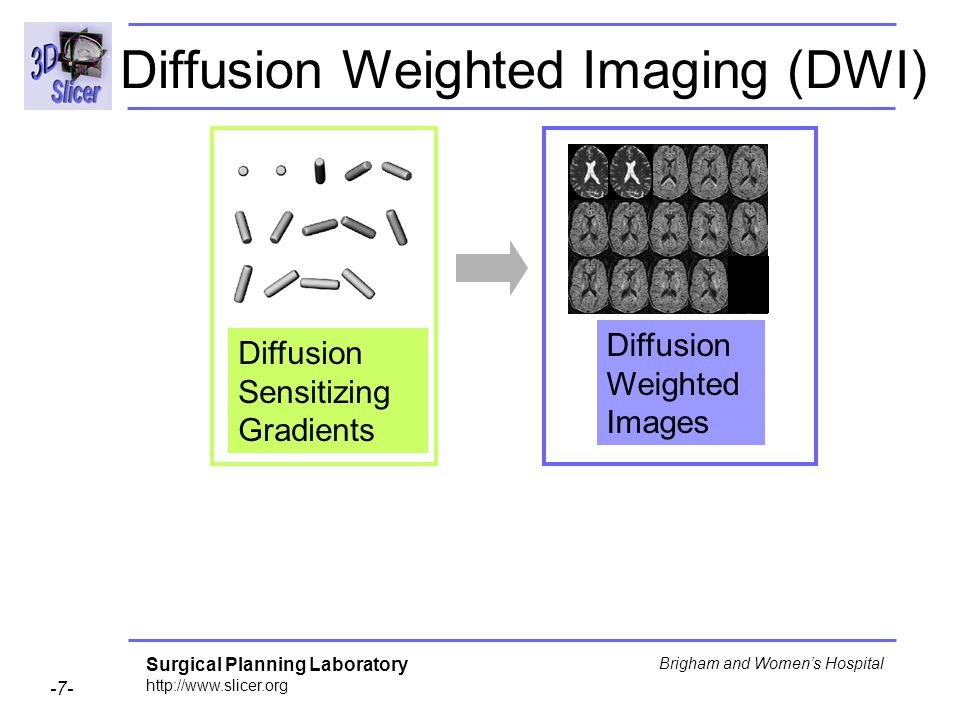 Surgical Planning Laboratory Brigham and Womens Hospital Diffusion Weighted Imaging (DWI) Diffusion Sensitizing Gradients Diffusion Weighted Images