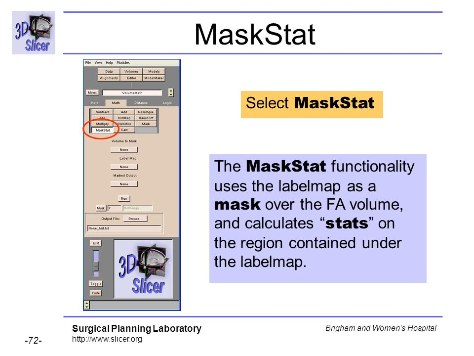 Surgical Planning Laboratory http://www.slicer.org -72- Brigham and Womens Hospital MaskStat Select MaskStat The MaskStat functionality uses the labelmap as a mask over the FA volume, and calculates stats on the region contained under the labelmap.