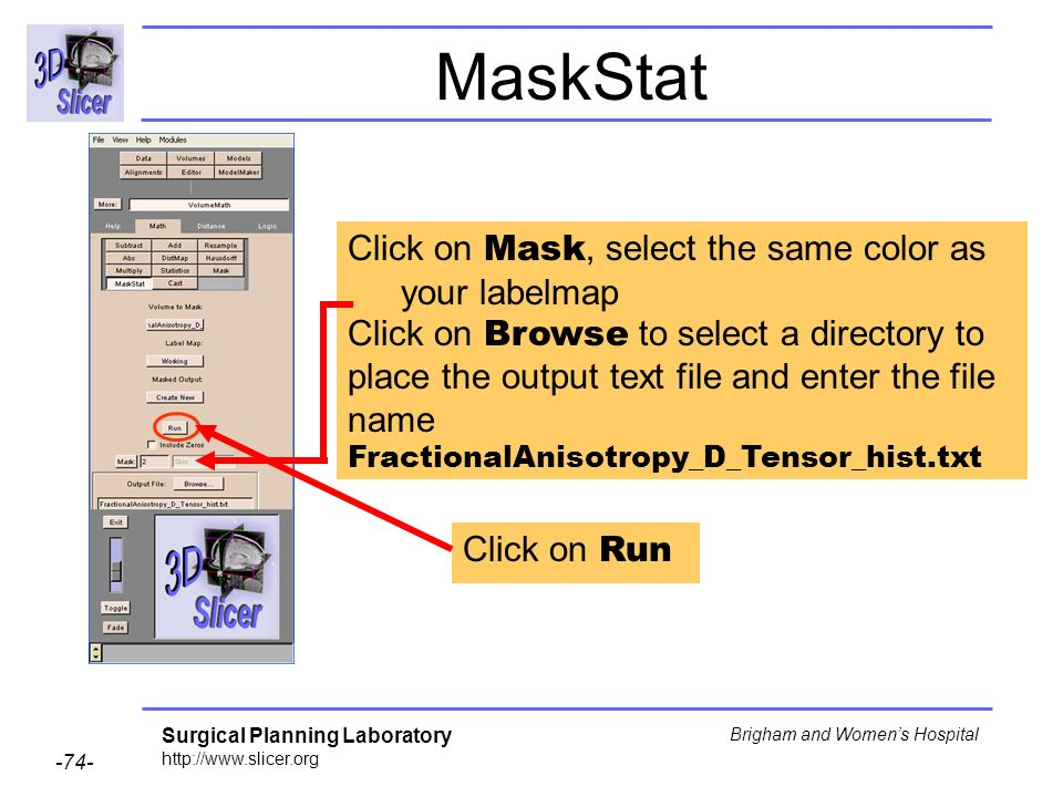 Surgical Planning Laboratory http://www.slicer.org -74- Brigham and Womens Hospital MaskStat Click on Run Click on Mask, select the same color as your