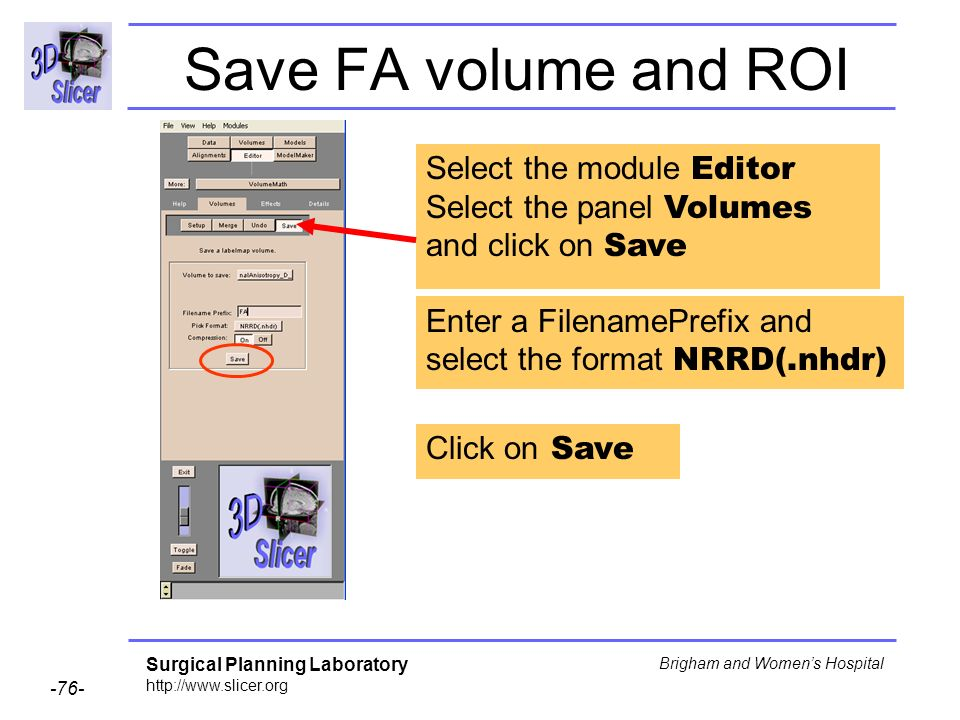 Surgical Planning Laboratory http://www.slicer.org -76- Brigham and Womens Hospital Save FA volume and ROI Select the module Editor Select the panel Volumes and click on Save Enter a FilenamePrefix and select the format NRRD(.nhdr) Click on Save