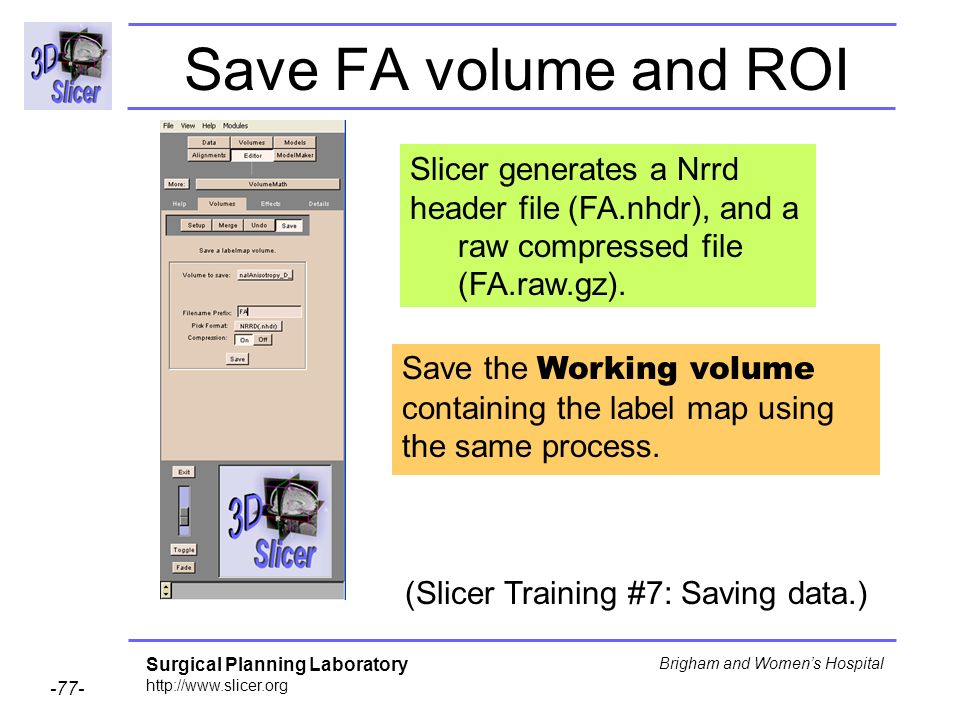 Surgical Planning Laboratory Brigham and Womens Hospital Save FA volume and ROI Slicer generates a Nrrd header file (FA.nhdr), and a raw compressed file (FA.raw.gz).