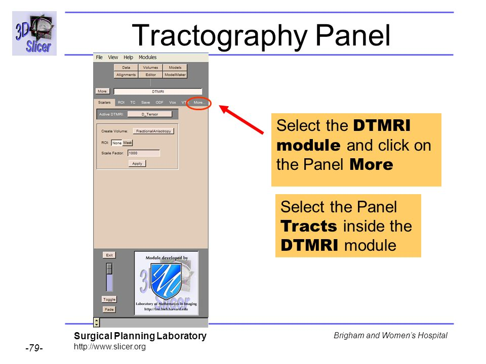 Surgical Planning Laboratory http://www.slicer.org -79- Brigham and Womens Hospital Tractography Panel Select the DTMRI module and click on the Panel More Select the Panel Tracts inside the DTMRI module