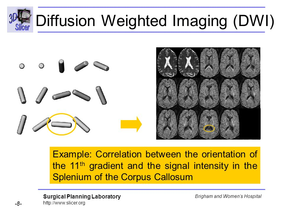 Surgical Planning Laboratory http://www.slicer.org -8- Brigham and Womens Hospital Diffusion Weighted Imaging (DWI) Example: Correlation between the orientation of the 11 th gradient and the signal intensity in the Splenium of the Corpus Callosum